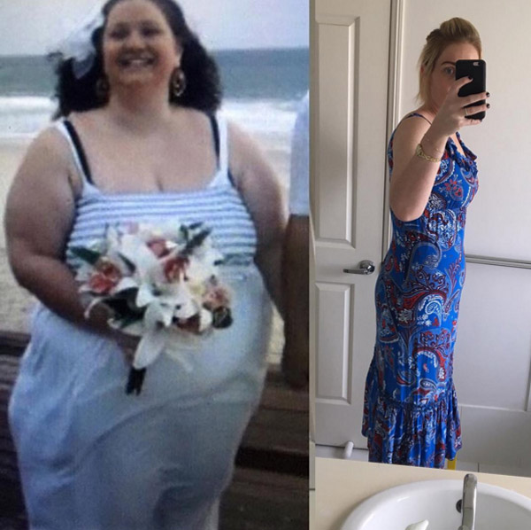 Женщина похудела во время беременности